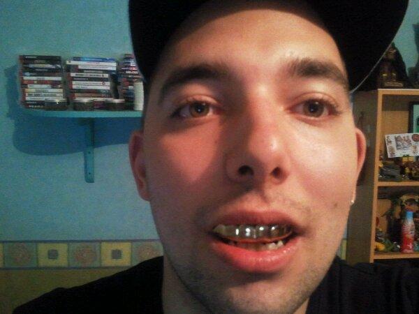 moi avec les dents de joey starr vigorboss. Black Bedroom Furniture Sets. Home Design Ideas